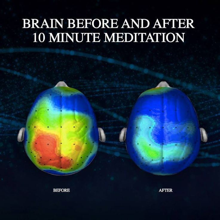 176518-The-Brain-Before-And-After-Meditation